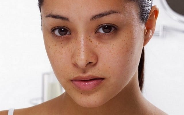 face shape dark eyes spots