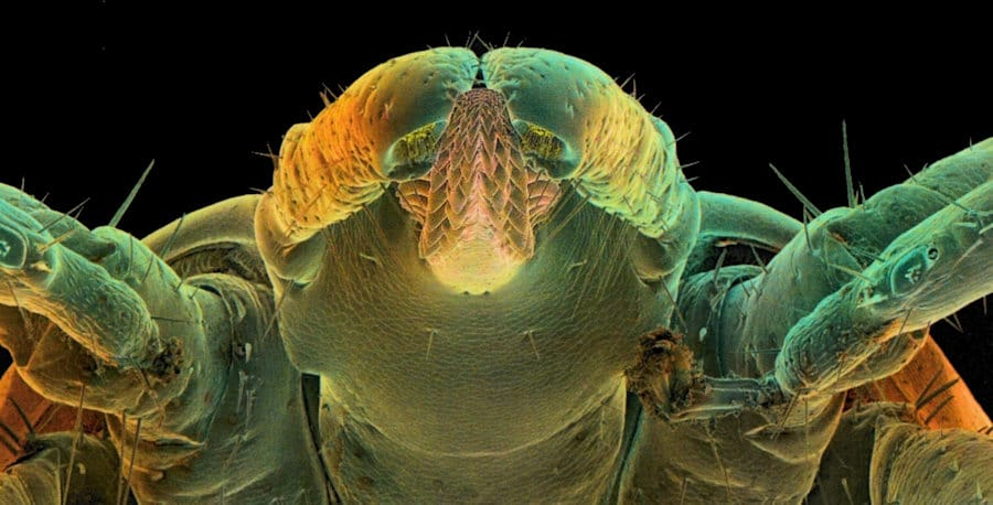 Scanning electron microscopy of the head of a tick
