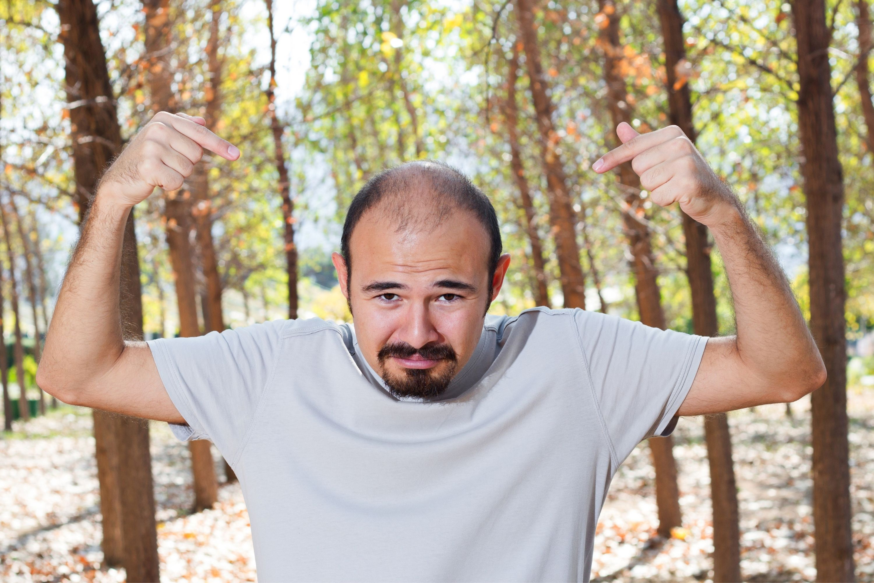 Medications That Can Cause Baldness